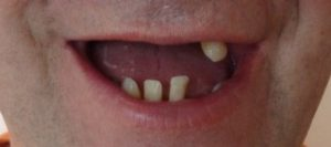 All on 4 / Teeth In A Day